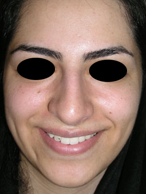 نمونه Cosmetic nose surgery کد 1