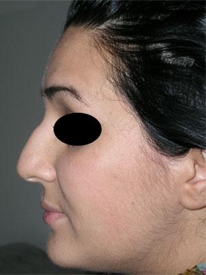 نمونه Cosmetic nose surgery کد 11