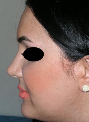 نمونه nose surgery gallery کد 12