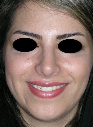 نمونه Cosmetic nose surgery کد 2