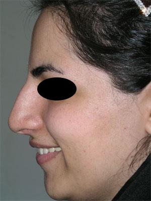 نمونه Cosmetic nose surgery کد 3