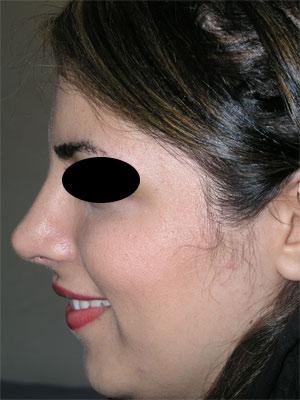 نمونه Cosmetic nose surgery کد 4