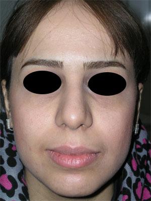نمونه Chin cosmetic surgery کد 1