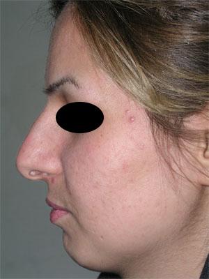 نمونه Chin cosmetic surgery کد 10