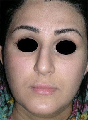 نمونه nose surgery gallery کد 10