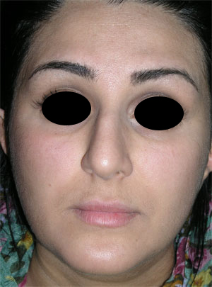 نمونه Cosmetic nose surgery کد 10