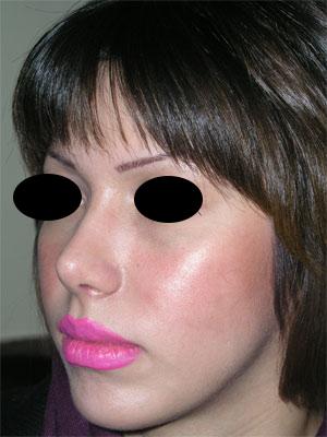 نمونه Chin cosmetic surgery کد 13