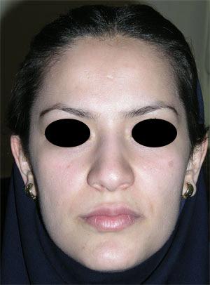 نمونه Cosmetic nose surgery کد 13