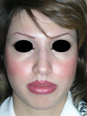 نمونه Chin cosmetic surgery کد 14