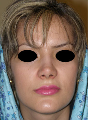 نمونه Cosmetic nose surgery کد 14