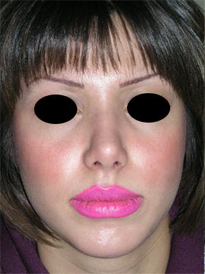 نمونه Chin cosmetic surgery کد 15