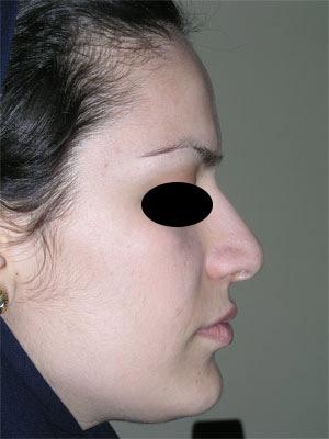 نمونه Cosmetic nose surgery کد 15