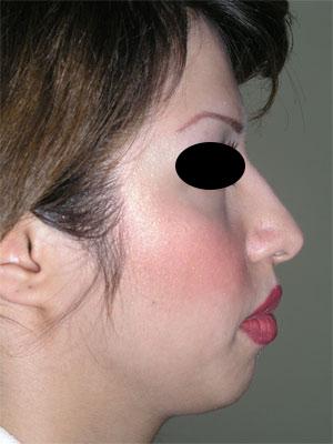 نمونه Chin cosmetic surgery کد 16