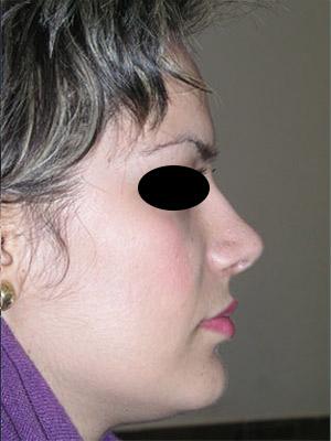 نمونه Cosmetic nose surgery کد 16