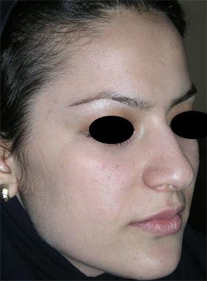نمونه Cosmetic nose surgery کد 17
