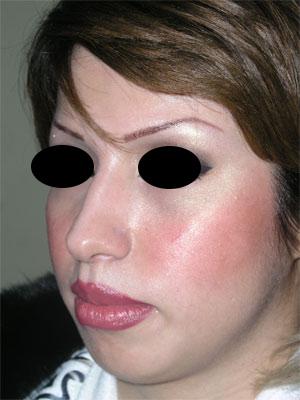 نمونه Chin cosmetic surgery کد 18