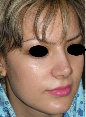 نمونه Cosmetic nose surgery کد 18