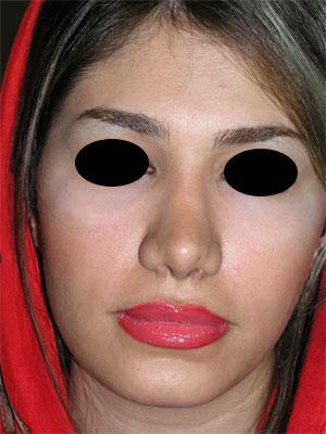 نمونه Chin cosmetic surgery کد 19