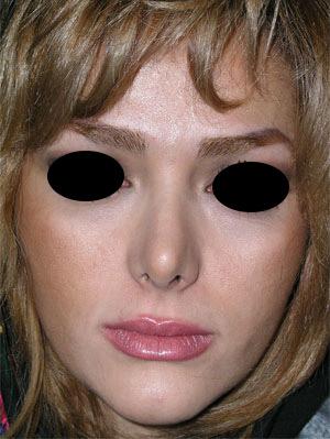 نمونه Cosmetic nose surgery کد 19