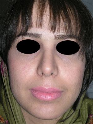 نمونه Chin cosmetic surgery کد 2