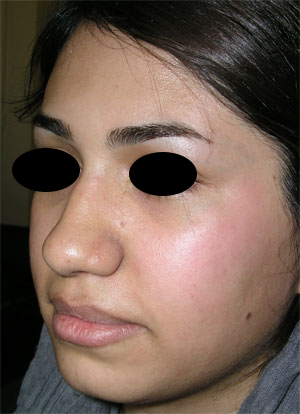 نمونه Chin cosmetic surgery کد 20