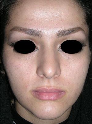 نمونه Cosmetic nose surgery کد 20