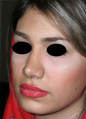نمونه Chin cosmetic surgery کد 21