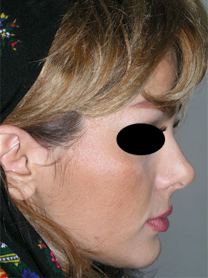 نمونه Cosmetic nose surgery کد 21