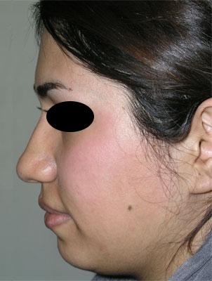 نمونه Chin cosmetic surgery کد 22