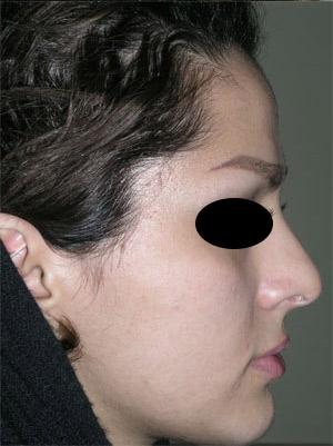 نمونه Cosmetic nose surgery کد 22