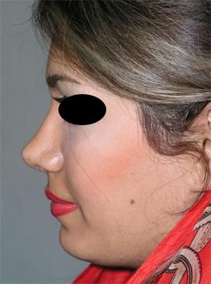 نمونه Chin cosmetic surgery کد 23