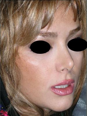 نمونه Cosmetic nose surgery کد 23