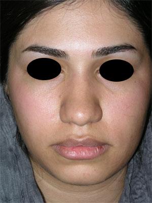 نمونه Chin cosmetic surgery کد 24