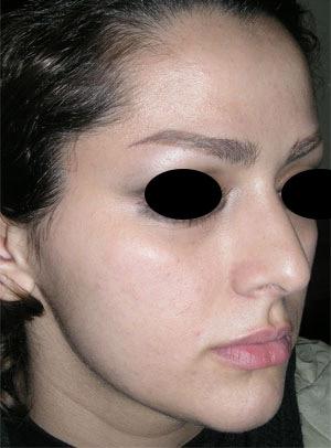 نمونه Cosmetic nose surgery کد 24