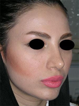 نمونه Chin cosmetic surgery کد 25