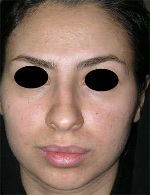 نمونه Chin cosmetic surgery کد 26