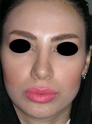 نمونه Chin cosmetic surgery کد 27