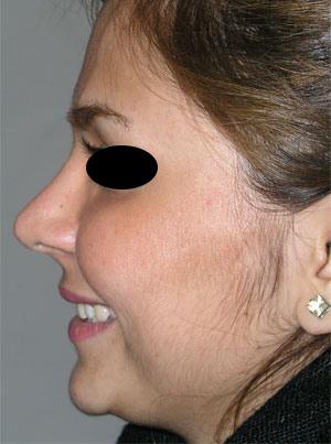 نمونه Cosmetic nose surgery کد 27