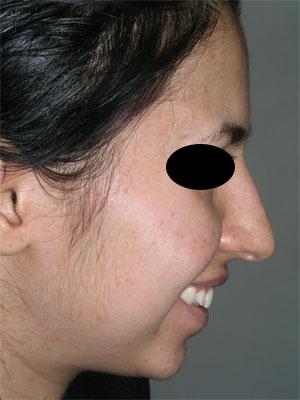نمونه Chin cosmetic surgery کد 28