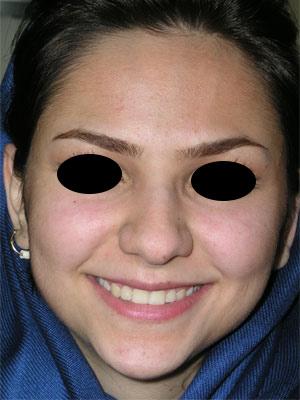 نمونه Cosmetic nose surgery کد 28