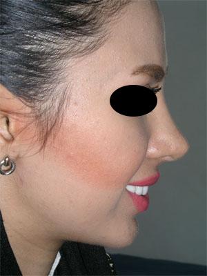 نمونه Chin cosmetic surgery کد 29