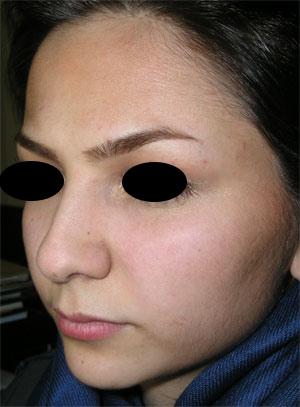 نمونه Cosmetic nose surgery کد 29