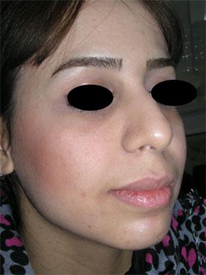 نمونه Chin cosmetic surgery کد 3