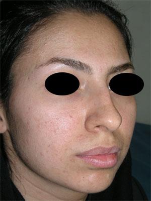 نمونه Chin cosmetic surgery کد 30