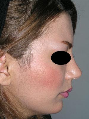 نمونه Chin cosmetic surgery کد 31