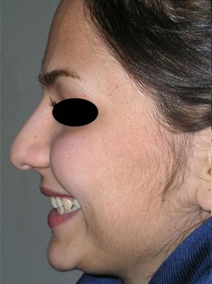 نمونه Cosmetic nose surgery کد 31