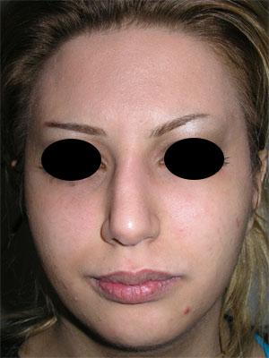 نمونه Chin cosmetic surgery کد 32