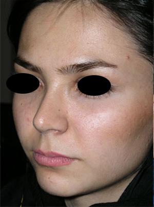 نمونه Cosmetic nose surgery کد 32