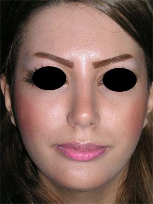 نمونه Chin cosmetic surgery کد 33
