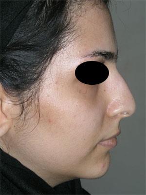 نمونه Cosmetic nose surgery کد 33